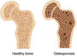 osteoporosis-bone-density